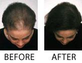 Women's Hair Loss Before and After